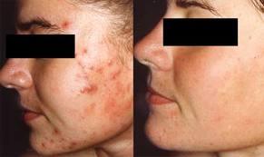 До и после удаление шрамов на лице